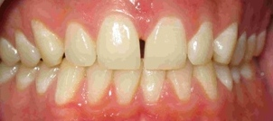 Invisalign Case 2 Before