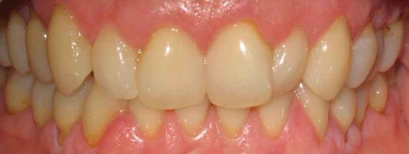Invisalign Case 1 Before