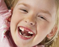 写真:歯の喪失